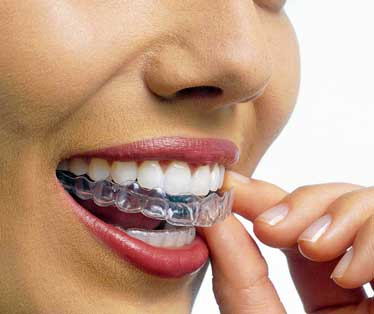 ortodonzia implantologia torino